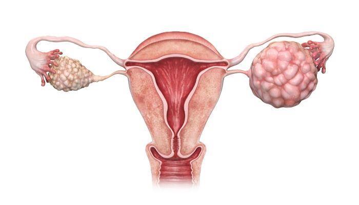 pierderea în greutate după îndepărtarea chistului ovar)